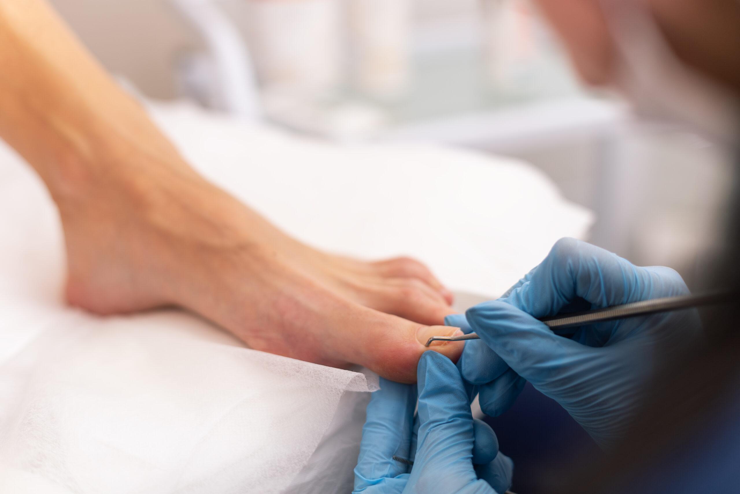 Opracowanie wrastającego paznokcia